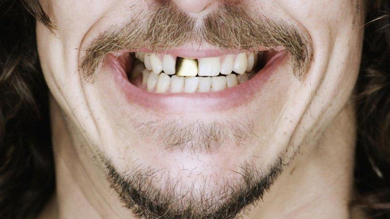 Preferenza Denti d'oro NT43