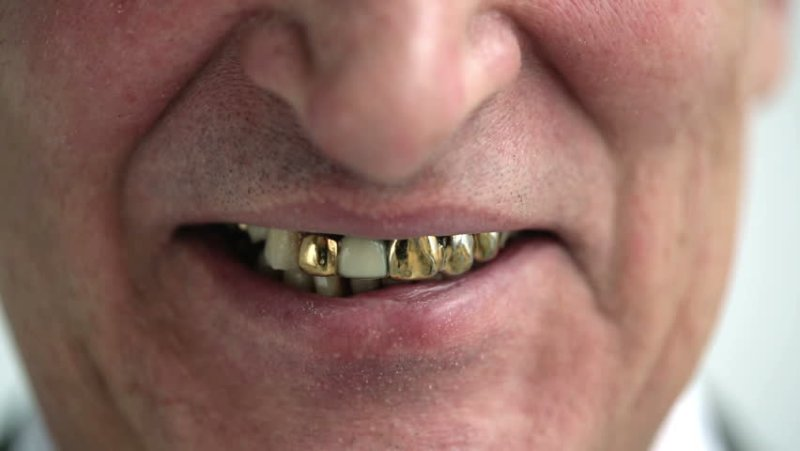 Favorito Denti d'oro FJ04