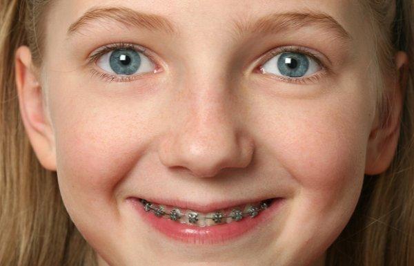Famoso Apparecchio per i denti: costi UN23