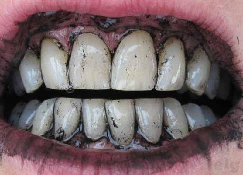 виниры для зубов что это фото