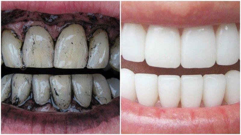 Carbone Attivo Per Denti Bianchi